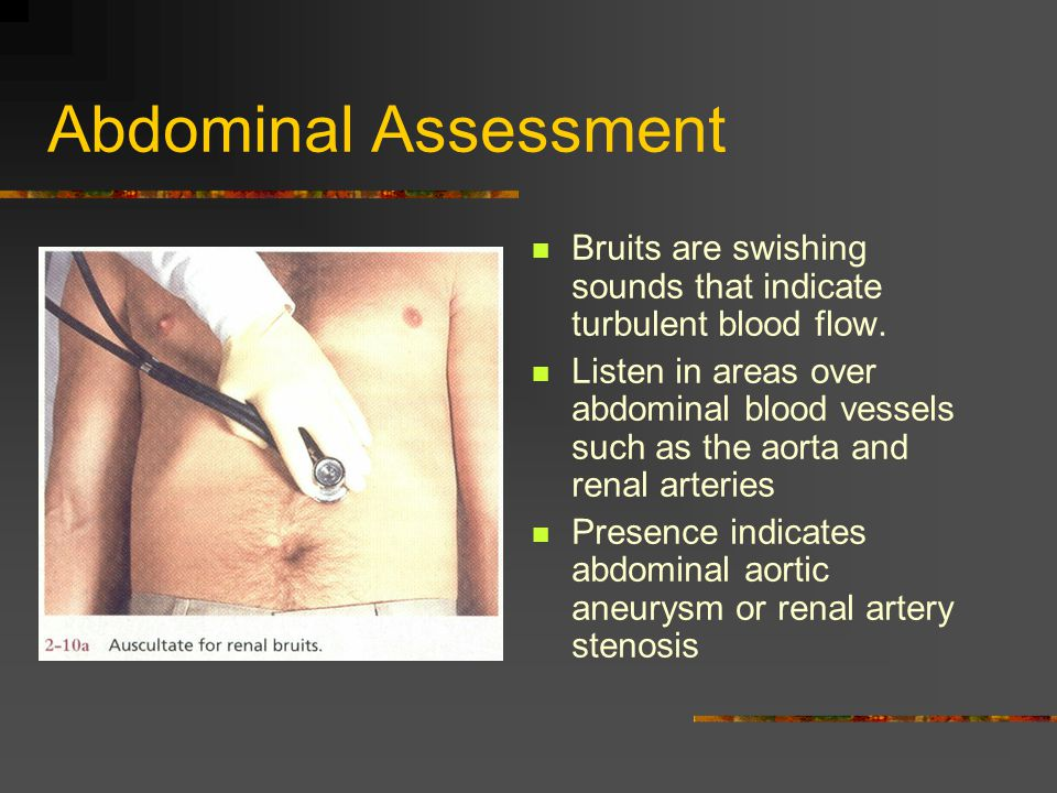 Abdominal Assessment Bruits are swishing sounds that indicate turbulent blood flow.
