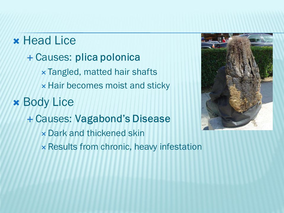 Head Lice Body Lice Causes: plica polonica Causes: Vagabond's Disease