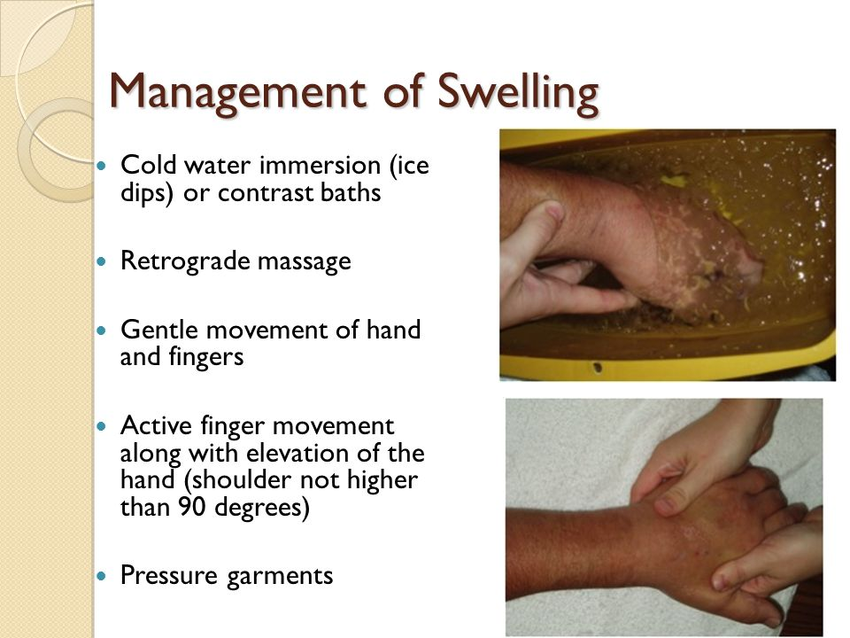 Management of Swelling