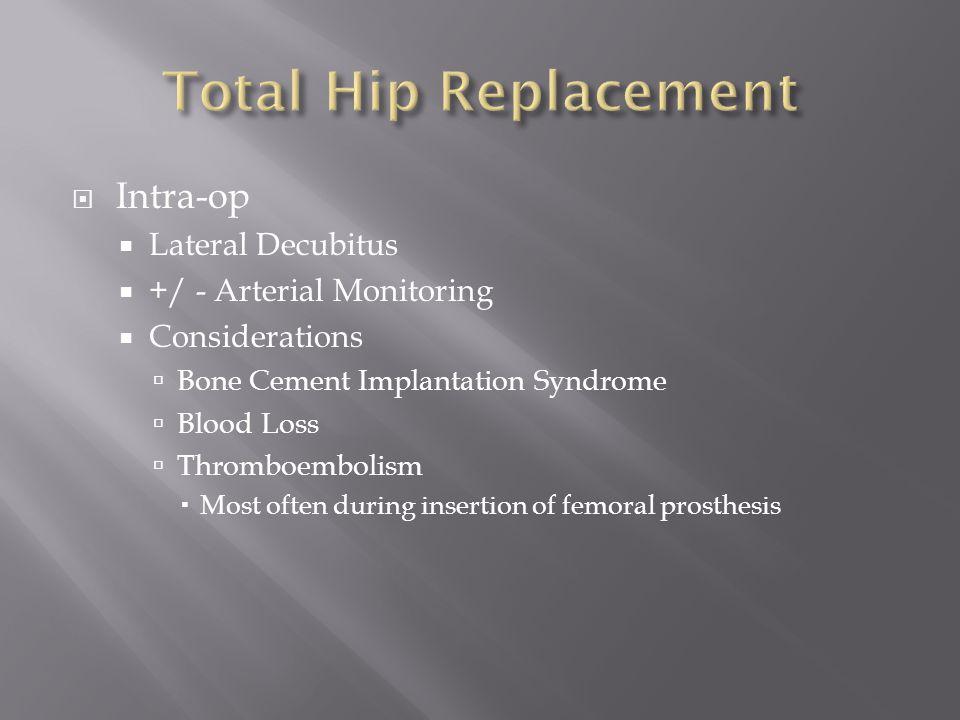 Total Hip Replacement Intra-op Lateral Decubitus