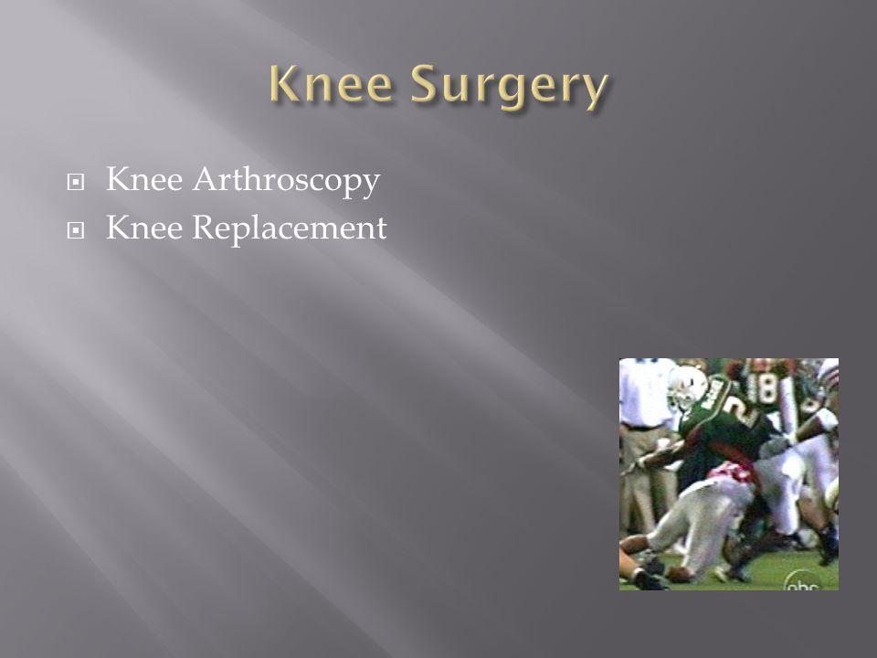 Knee Surgery Knee Arthroscopy Knee Replacement