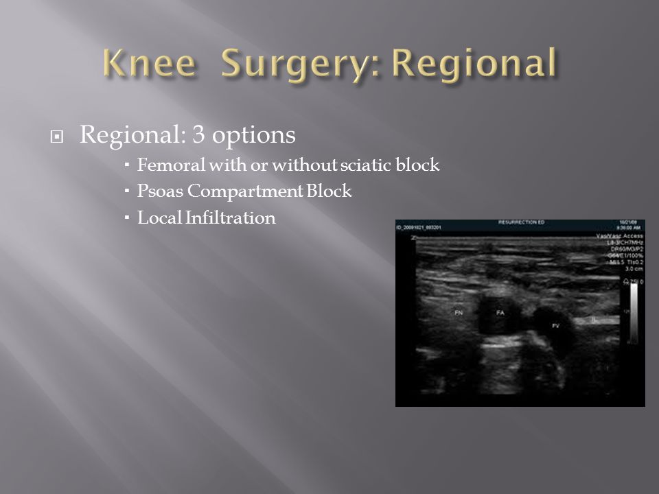 Knee Surgery: Regional