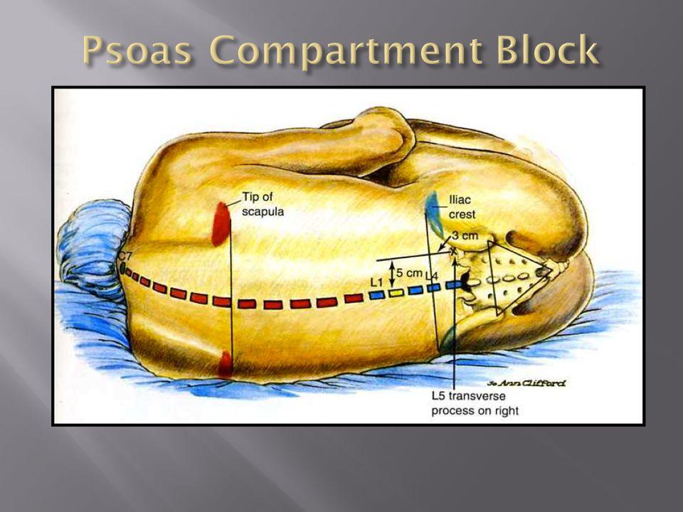 Psoas Compartment Block