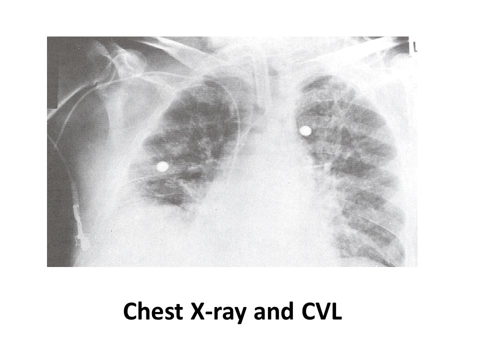 Chest X-ray and CVL
