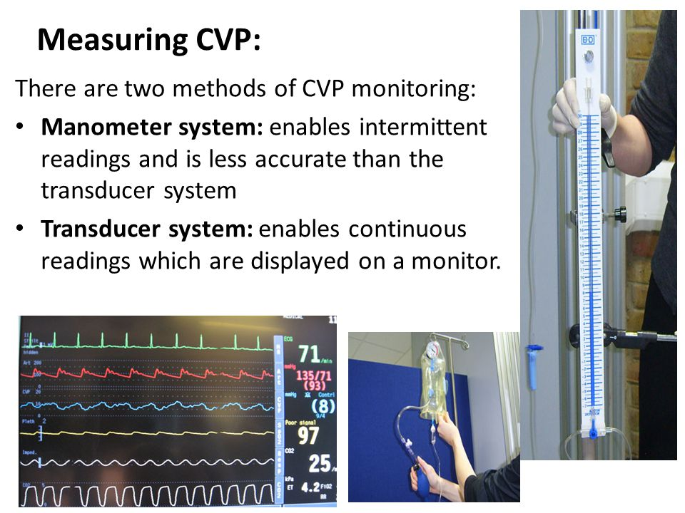 Measuring CVP: There are two methods of CVP monitoring: