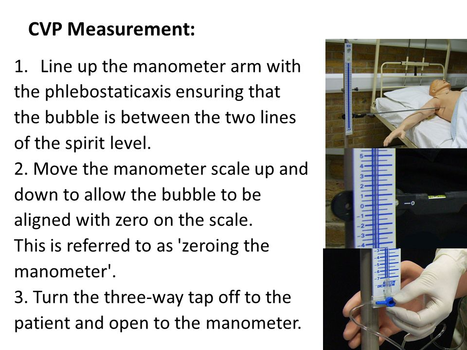 CVP Measurement: Line up the manometer arm with