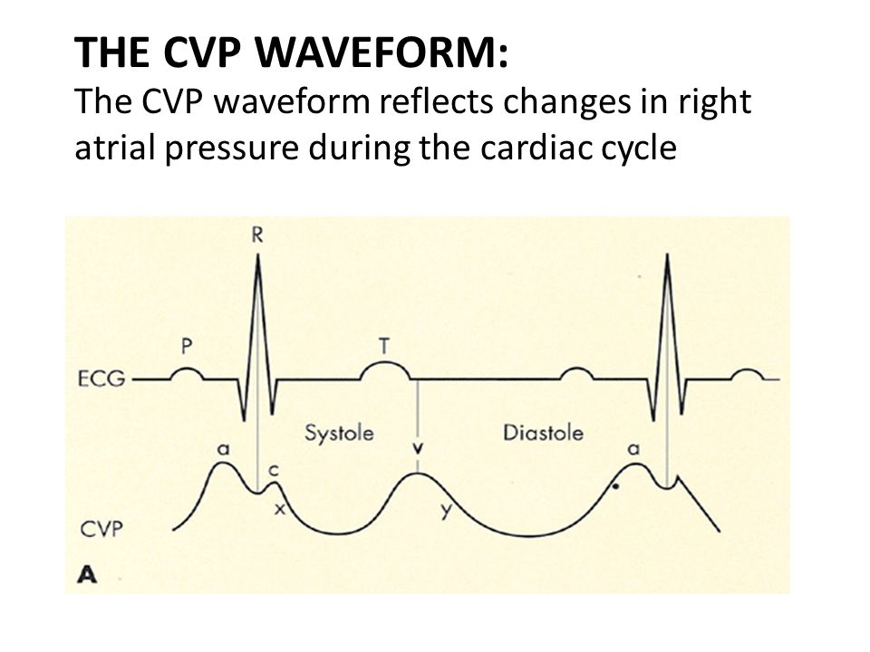 THE CVP WAVEFORM: The CVP waveform reflects changes in right atrial pressure during the cardiac cycle.