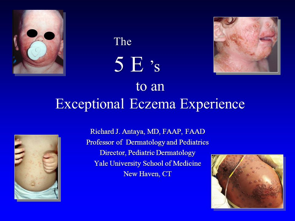 to an Exceptional Eczema Experience