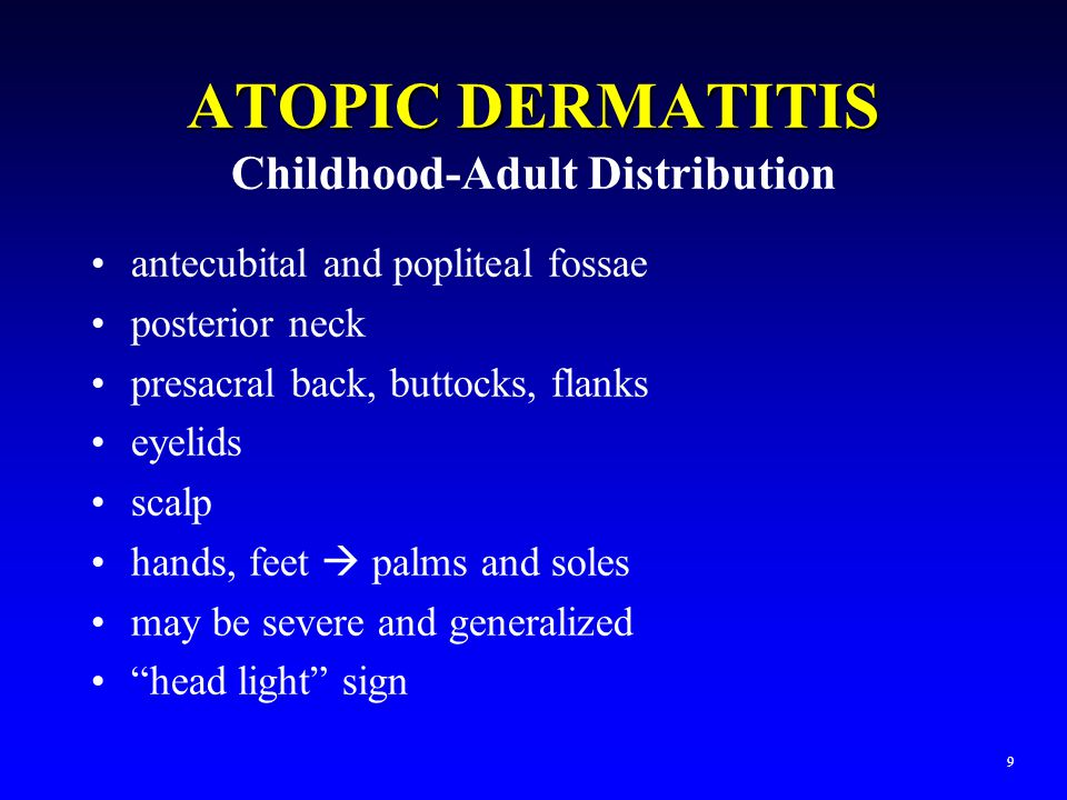 ATOPIC DERMATITIS Childhood-Adult Distribution