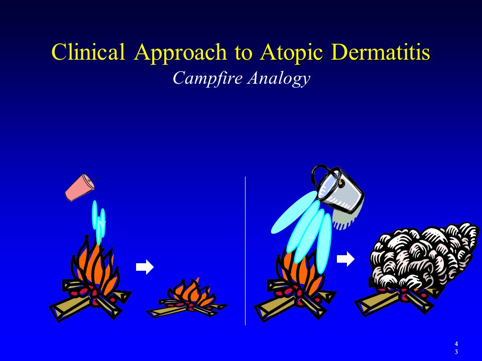 Clinical Approach to Atopic Dermatitis Campfire Analogy