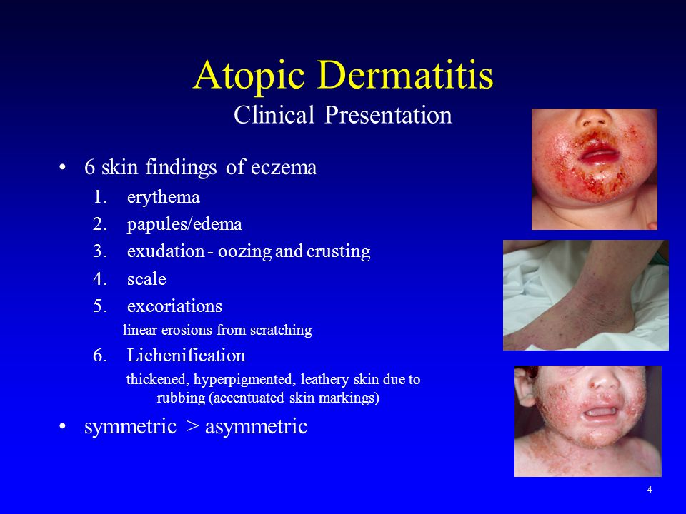 Atopic Dermatitis Clinical Presentation
