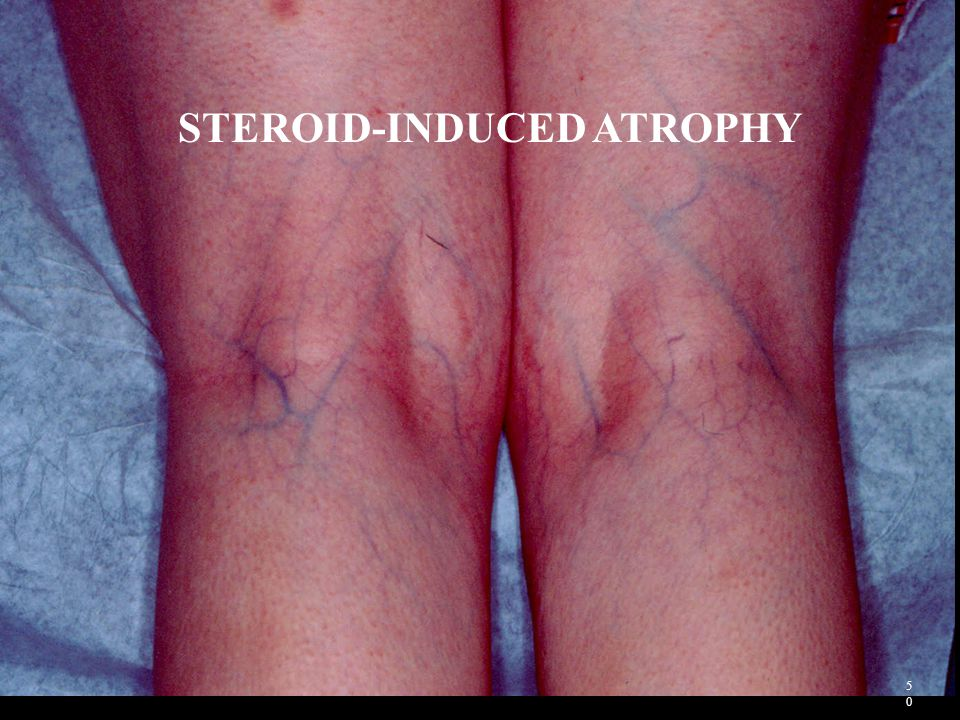 STEROID-INDUCED ATROPHY