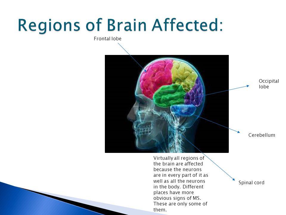 Regions of Brain Affected: