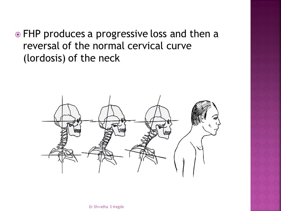 FHP produces a progressive loss and then a reversal of the normal cervical curve (lordosis) of the neck