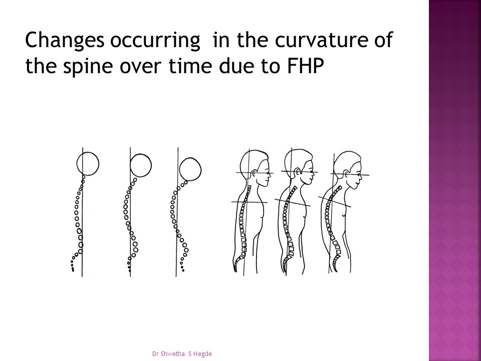 Changes occurring in the curvature of the spine over time due to FHP