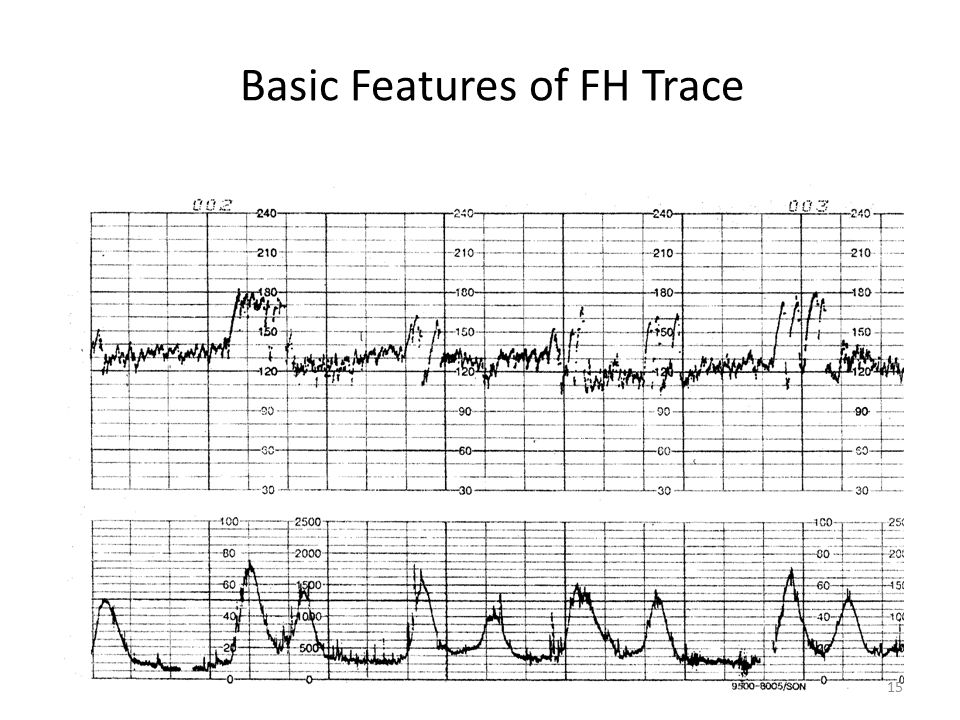 Basic Features of FH Trace