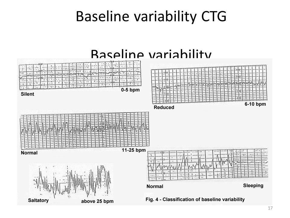 Baseline variability CTG Baseline variability