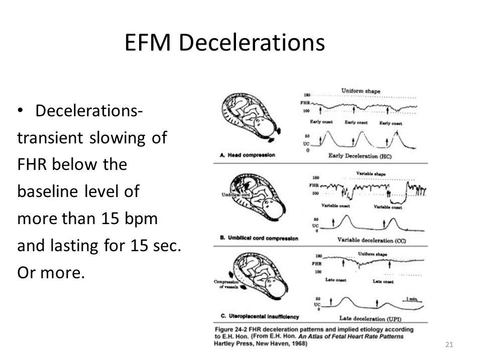 EFM Decelerations Decelerations- transient slowing of FHR below the