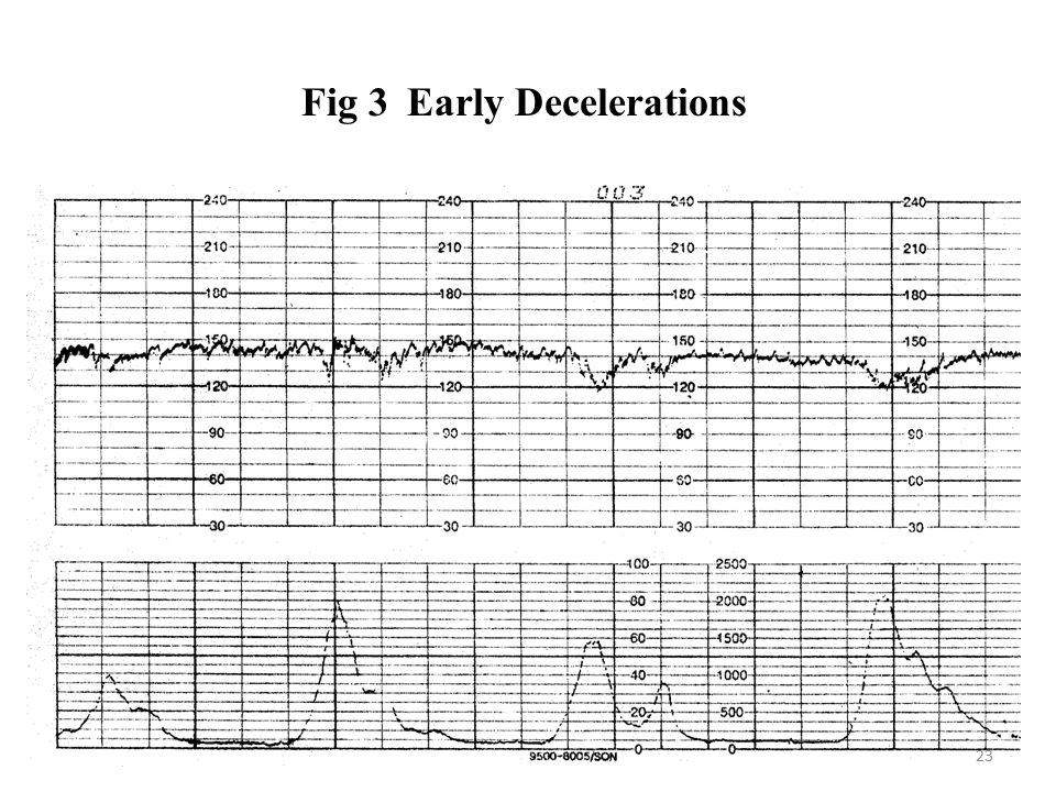 Fig 3 Early Decelerations
