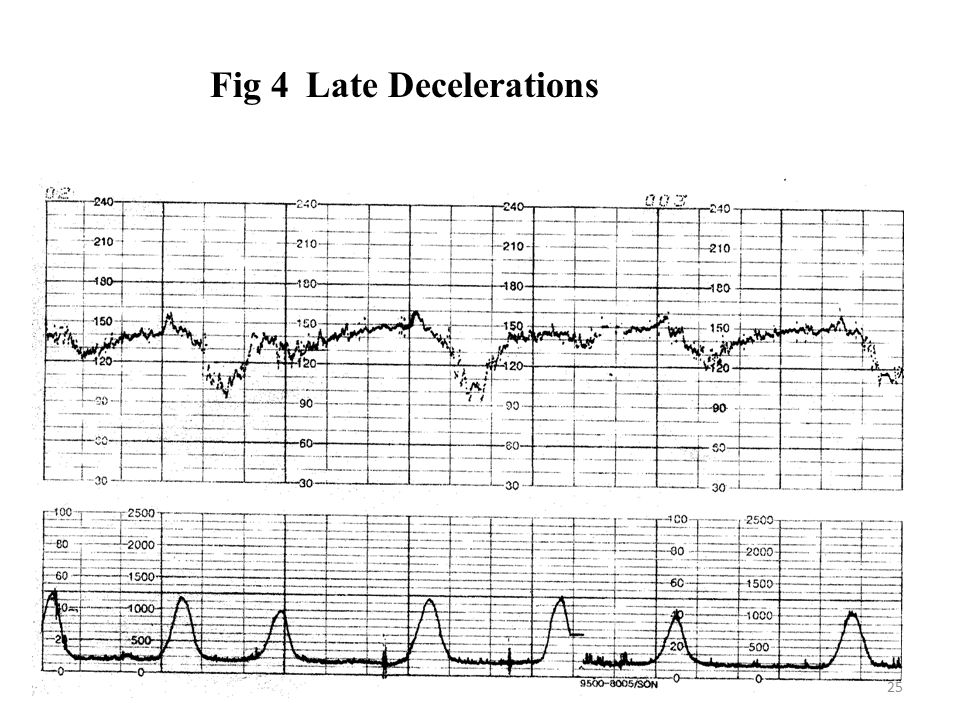 Fig 4 Late Decelerations