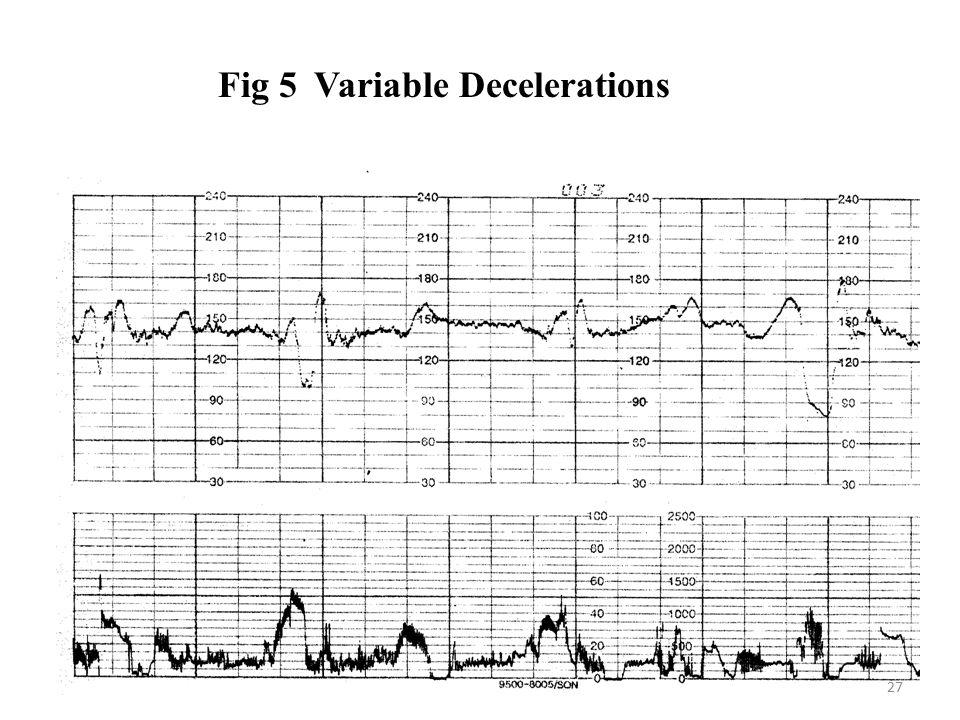 Fig 5 Variable Decelerations