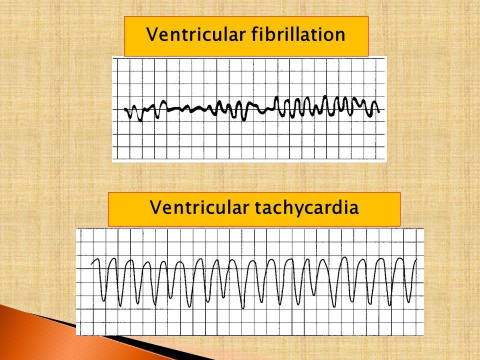 Ventricular fibrillation Ventricular tachycardia