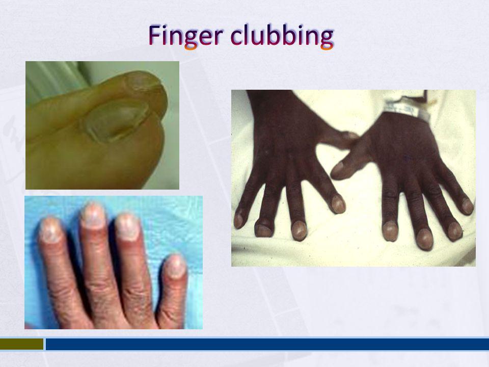 Finger clubbing