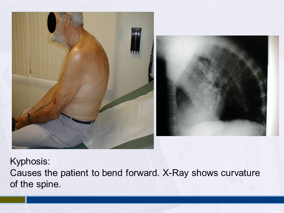 Kyphosis: Causes the patient to bend forward. X-Ray shows curvature of the spine.