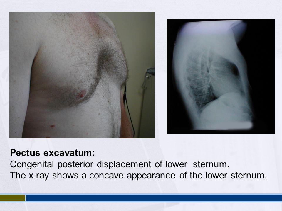 Pectus excavatum: Congenital posterior displacement of lower sternum.