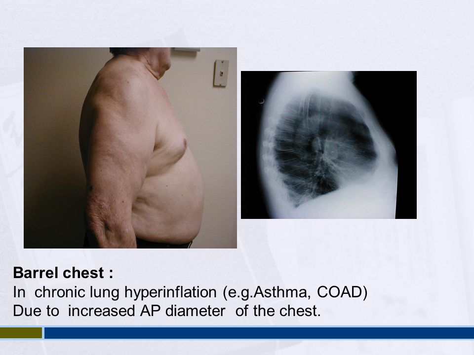 Barrel chest : In chronic lung hyperinflation (e.g.Asthma, COAD) Due to increased AP diameter of the chest.