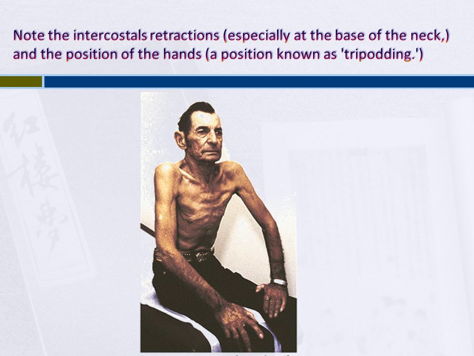 Note the intercostals retractions (especially at the base of the neck,) and the position of the hands (a position known as tripodding. )