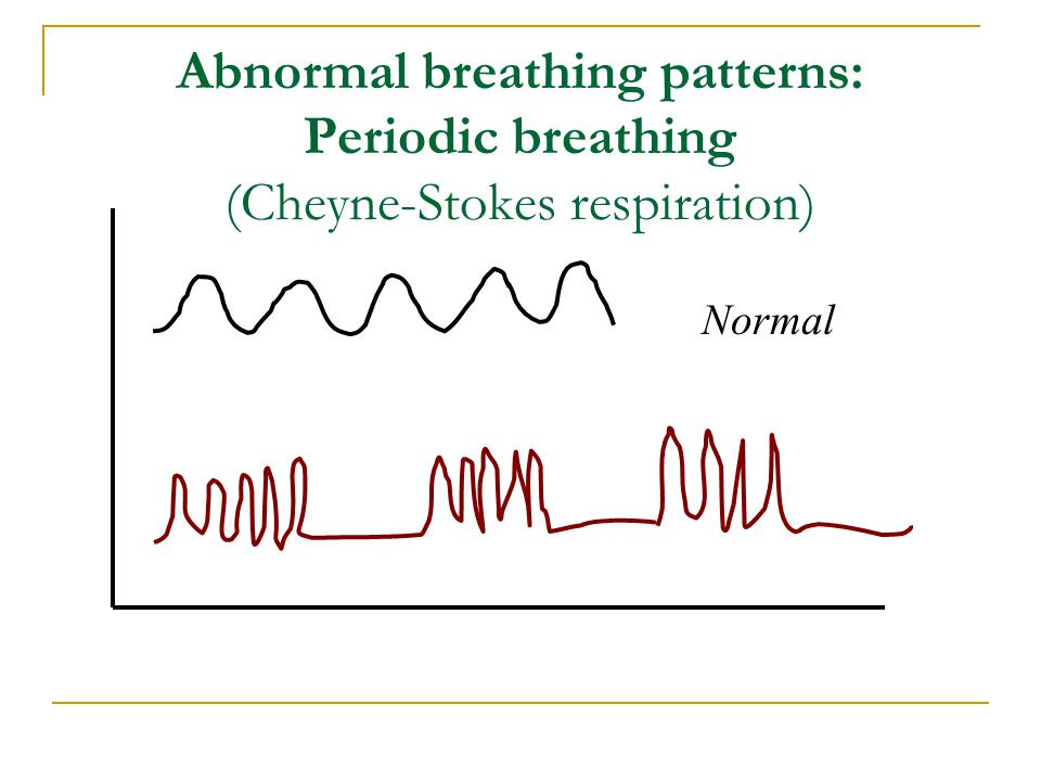 Abnormal breathing patterns: Periodic breathing (Cheyne-Stokes respiration)