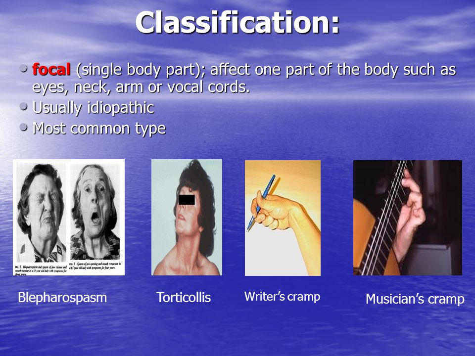 Classification: focal (single body part); affect one part of the body such as eyes, neck, arm or vocal cords.