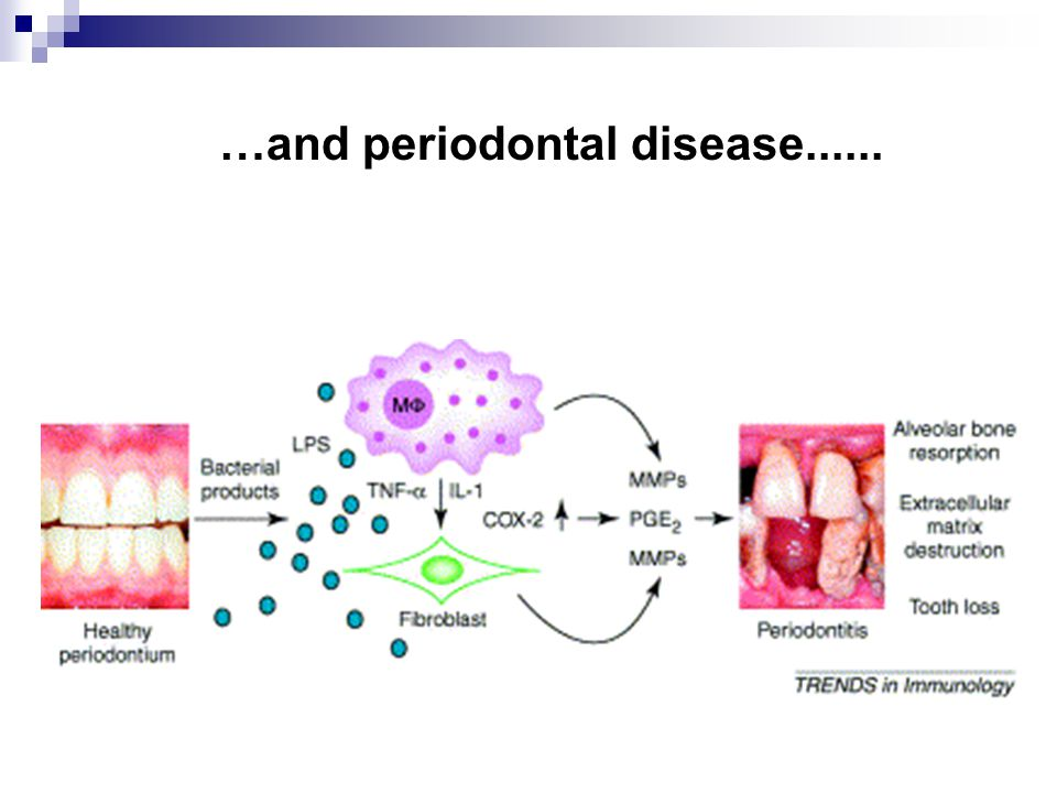 …and periodontal disease......