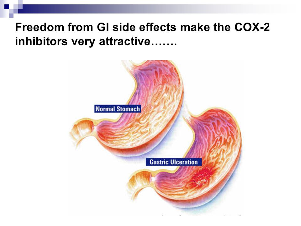 Freedom from GI side effects make the COX-2