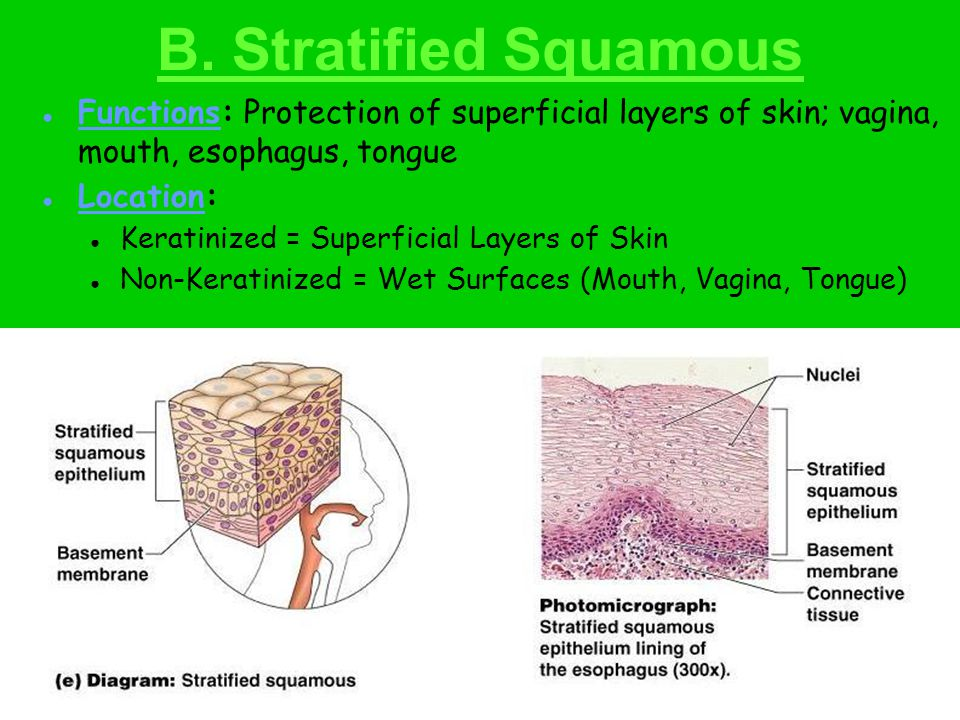 C. Stratified Cuboidal Functions: Protection and limited secretion of sweat glands. Location: Sudoriferous Glands (SWEAT)