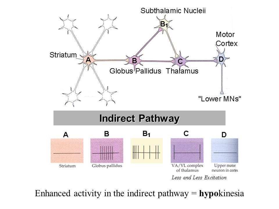 Enhanced activity in the indirect pathway = hypokinesia