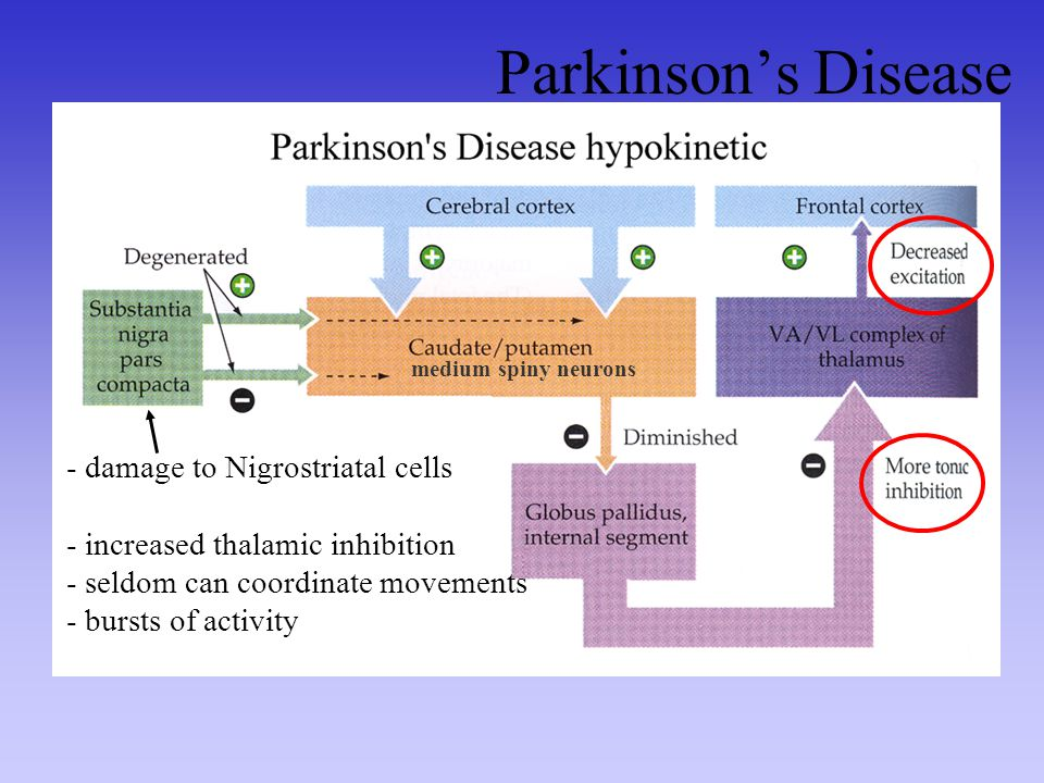 Parkinson's Disease damage to Nigrostriatal cells