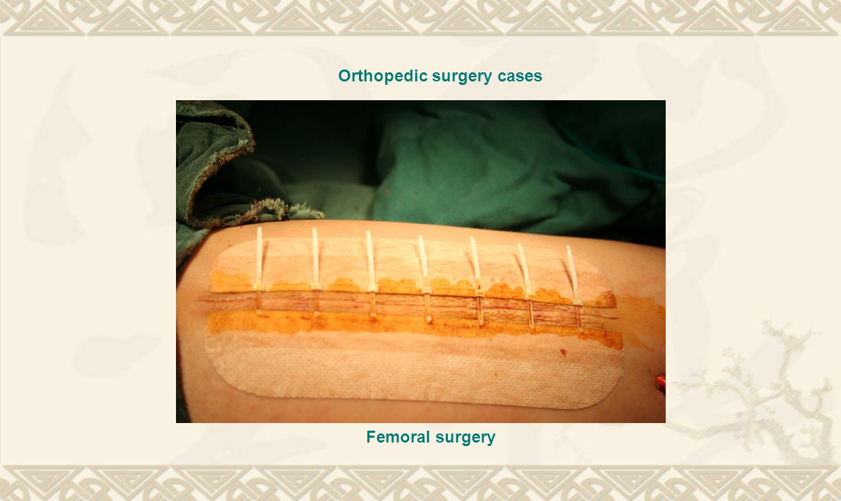 Orthopedic surgery cases