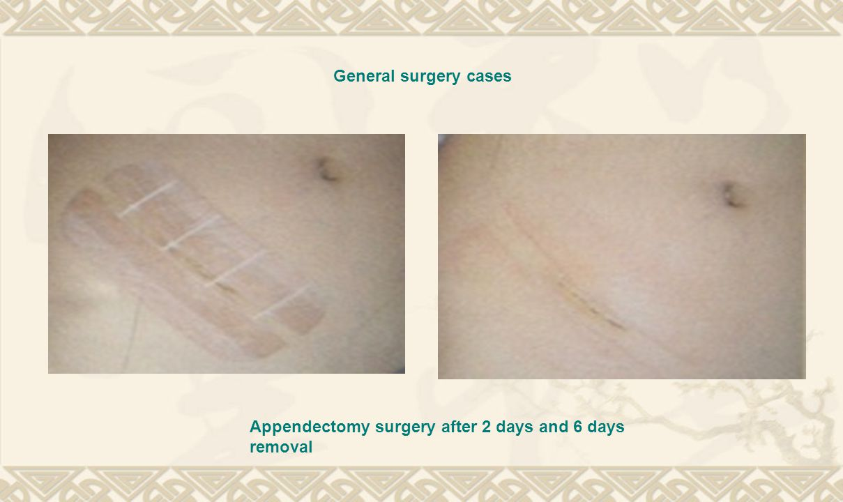 General surgery cases Appendectomy surgery after 2 days and 6 days removal