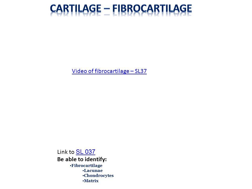 Cartilage – Fibrocartilage