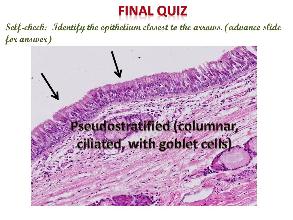 Pseudostratified (columnar, ciliated, with goblet cells)
