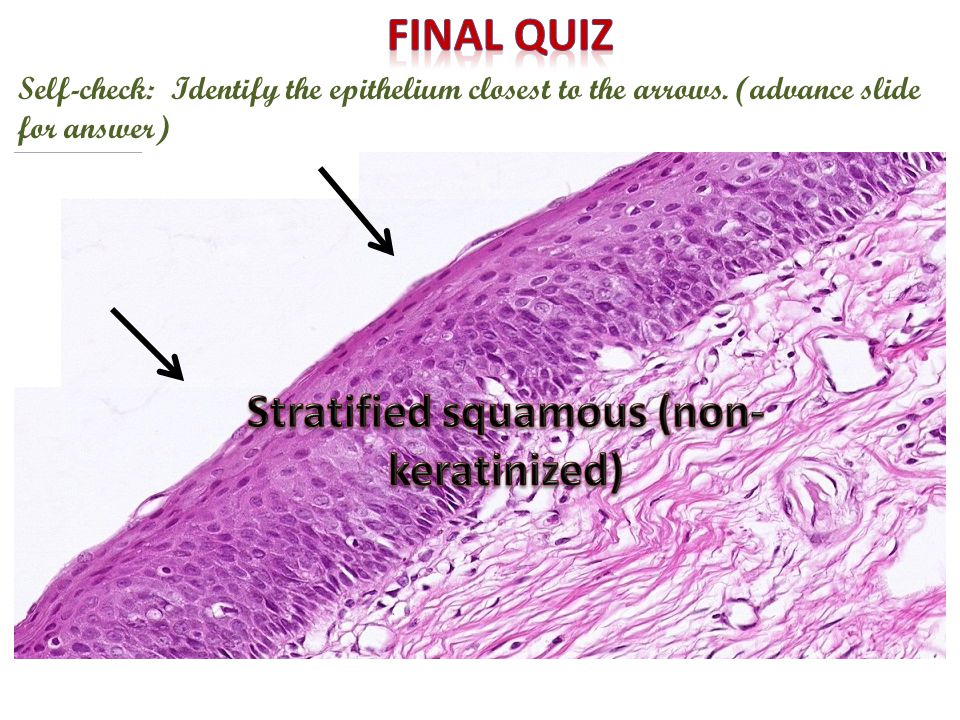 Stratified squamous (non-keratinized)