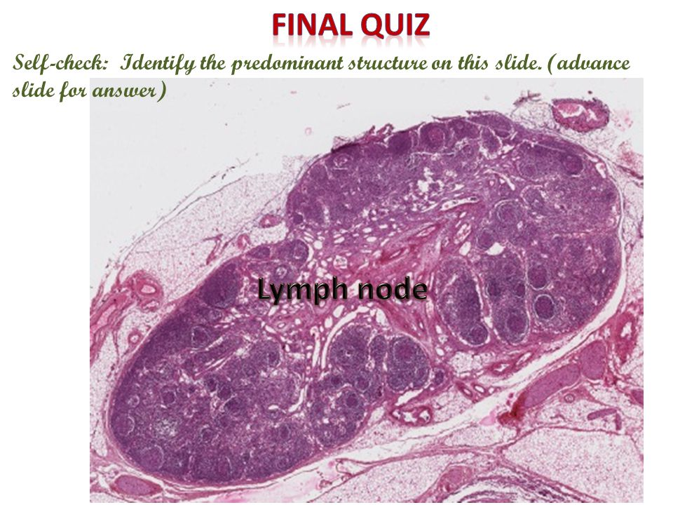 Final quiz Self-check: Identify the predominant structure on this slide. (advance slide for answer)
