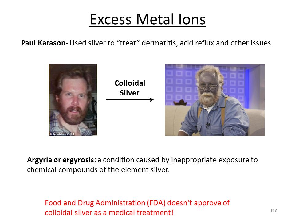 Excess Metal Ions Paul Karason- Used silver to treat dermatitis, acid reflux and other issues. Colloidal Silver.