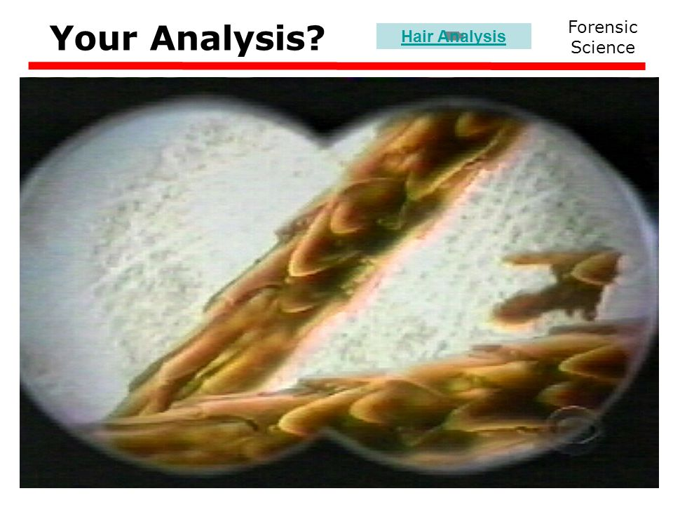 Your Analysis Forensic Science Hair Analysis