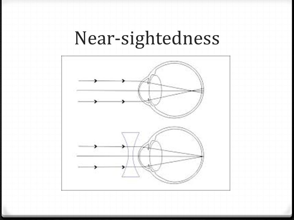 Near-sightedness