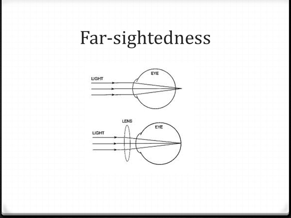 Far-sightedness