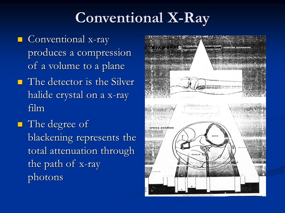 Conventional X-Ray Conventional x-ray produces a compression of a volume to a plane. The detector is the Silver halide crystal on a x-ray film.