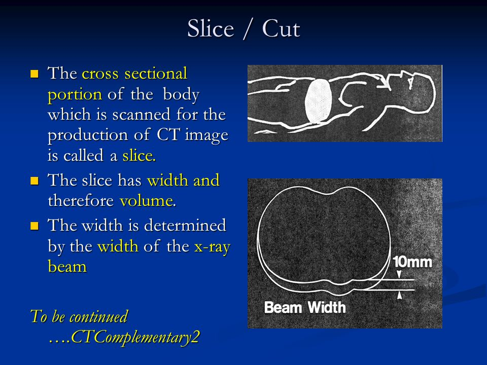Slice / Cut The cross sectional portion of the body which is scanned for the production of CT image is called a slice.